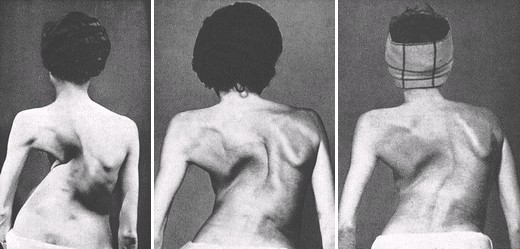 24-year-old woman severe scoliosis atrophied left